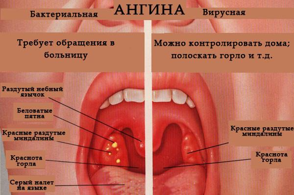 Виды ангина у детей фото лечение симптомы