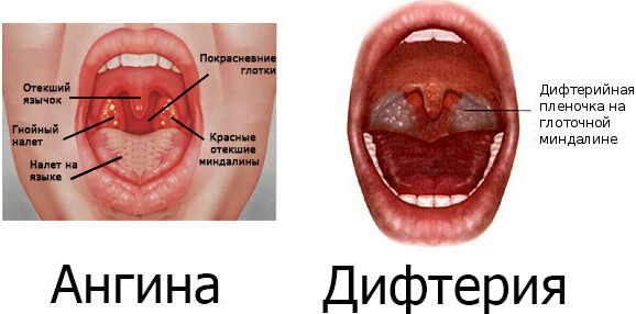 боли при глотании в горле