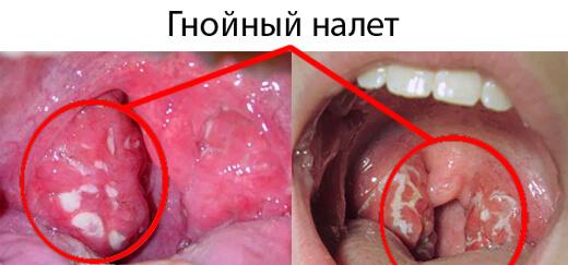 вирусная инфекция ангина лечение