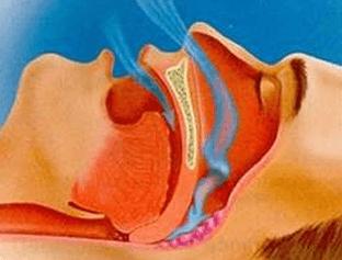 Причины храпа: особенности ночного дыхания, механизм храпа и методы лечения