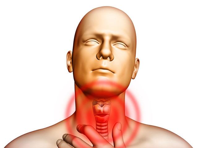 Воспаление связок горла или ларингит