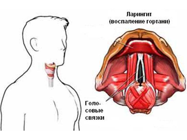 Как лечить больные связки горла