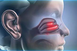 Как лечить полипы в носу без операции