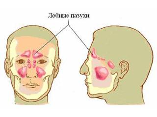 Острый фронтит: симптомы, профилактика и лечение острого фронтита.
