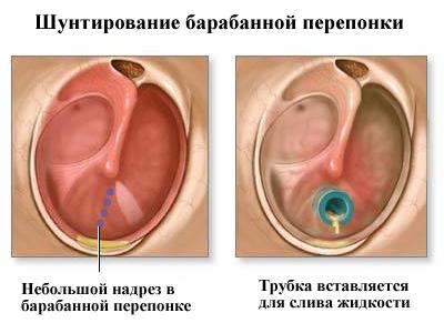 фурацилин в ухо детям при отите форум