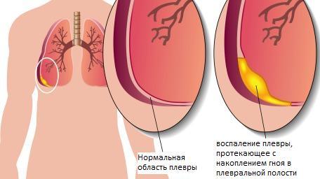 Плеврит легких: что это такое и как лечить, заразен ли и как передается