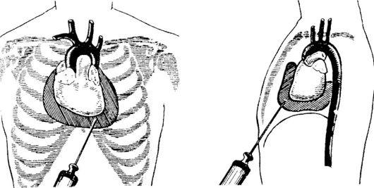 Плевральная пункция: набор для пункции в плевральной плоскости, техника выполнения и подготовка