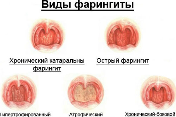 Хронический и острый фарингит у детей и взрослых: симптомы