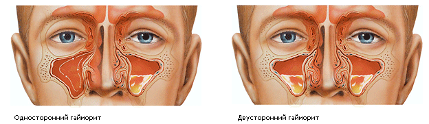 Что такое синусит и гайморит и как они проявляются
