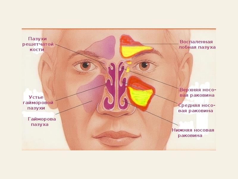 Синусит у детей воспаление пазух носа у 63