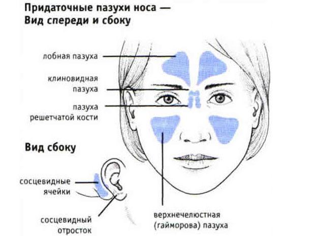 симптомы гайморита у взрослых фото