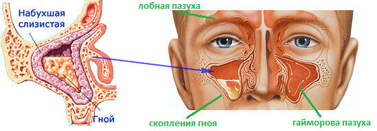 Капли от гайморита: как выбрать подходящие капли и спрей для носа при гайморите