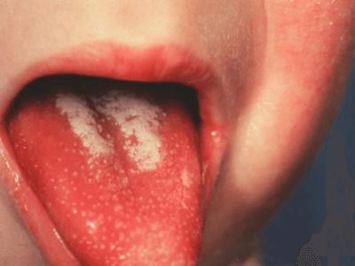 Признаки скарлатины у взрослых и детей: основная картина заболевания и анализы