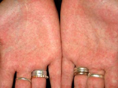 Скарлатина у взрослых: симптомы и лечение, диагностика и прогноз