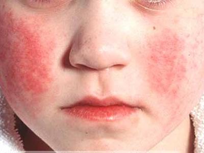 Скарлатина: инкубационный период у взрослых, как проходит лечение и диагностика