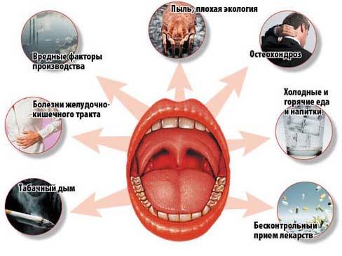Причины тонзиллита