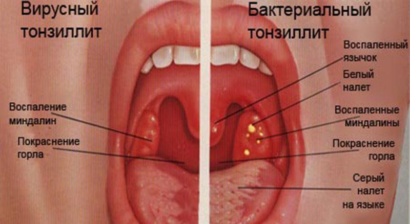 избавиться от паразитов эфирными маслами