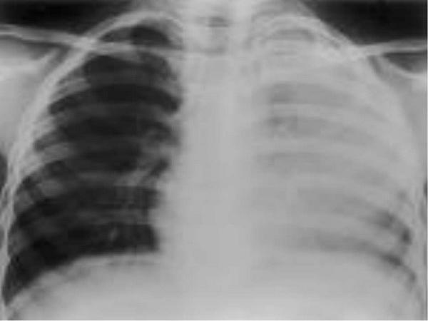 Признаки воспаления легких: кашлевый синдром, одышка и температура при воспалении легких