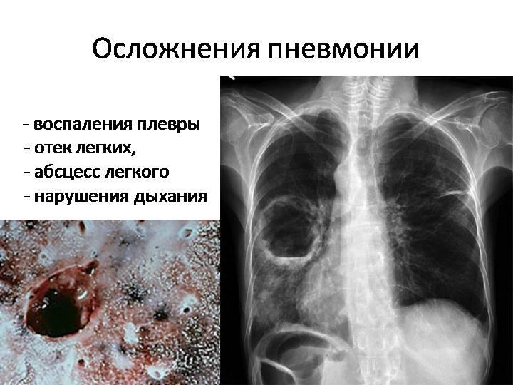 Молитва при воспаления лёгких
