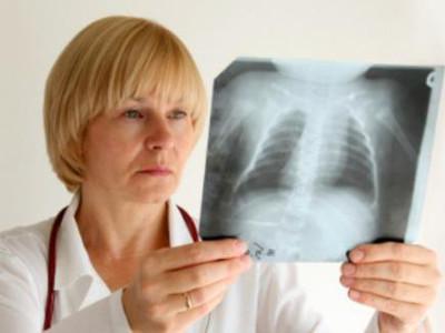 Симптомы воспаления легких у взрослых без температуры