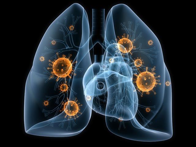 Признаки воспаления легких у взрослого при бактериальной и вирусной инфекции