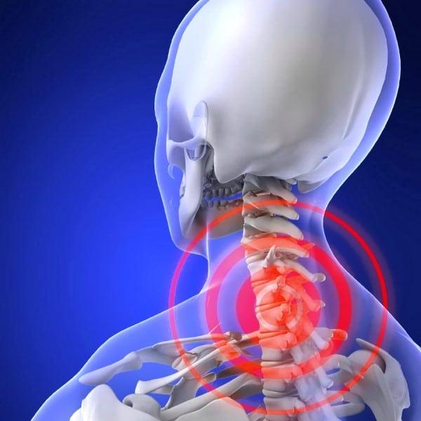 Остеохондроз шейного отдела позвоночного столба